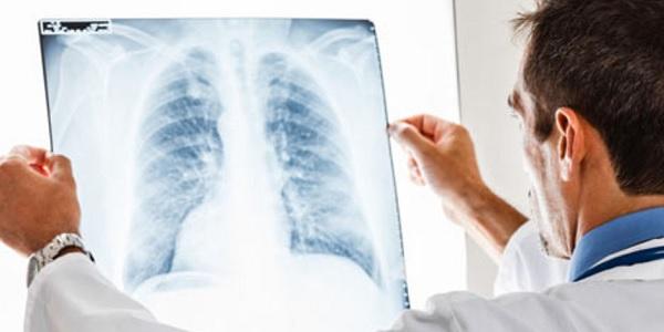 Akciğer kanseri tehlikesi erken teşhisle önlenebilir
